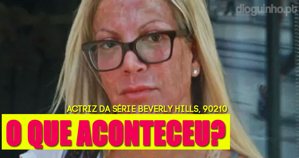 Photo of Tori Spelling assusta os fãs ao sair de uma clínica sem sobrancelhas e toda vermelha