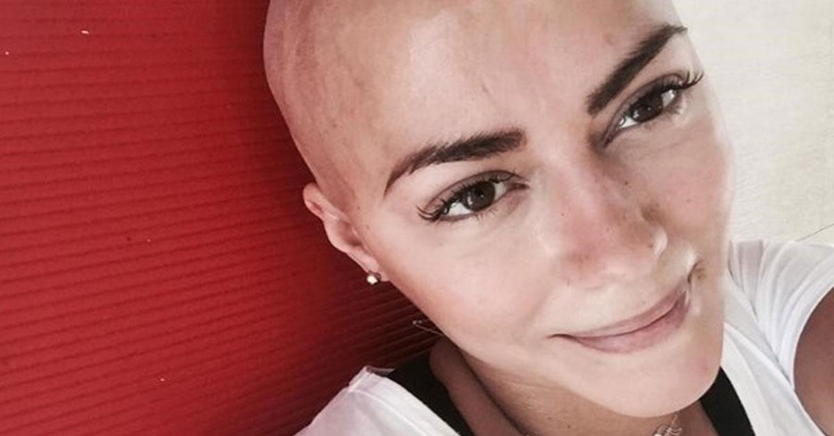 Photo of Sofia Ribeiro diz que não tem vergonha de estar careca