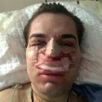 'Ken humano' brasileiro contrai bactéria comedora de carne