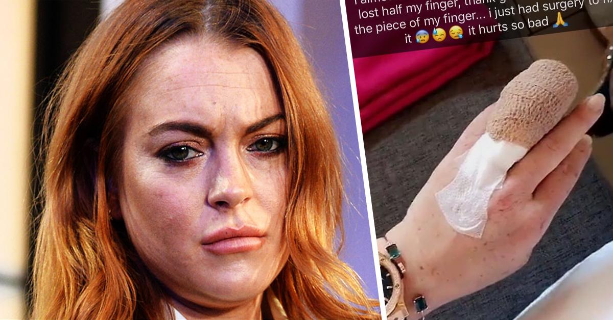 Photo of Lindsay Lohan ficou sem metade do dedo em acidente de barco
