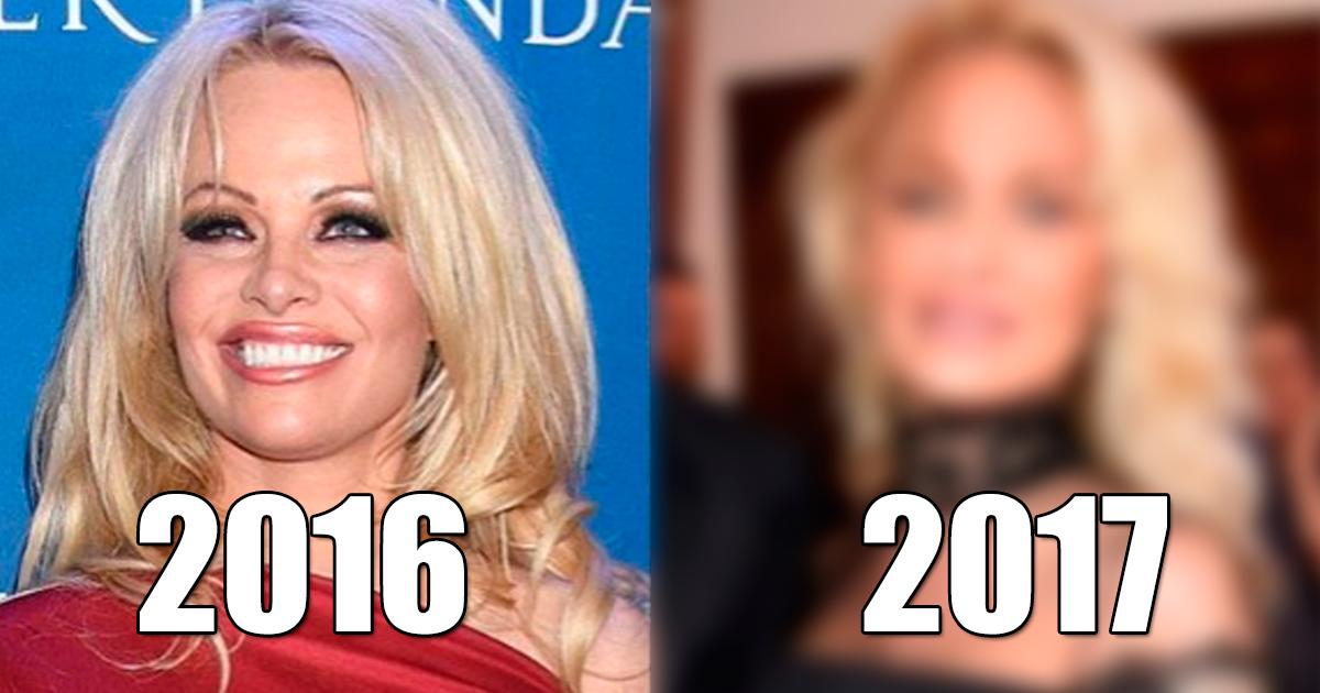 Photo of Pamela Anderson aparece em público IRRECONHECÍVEL!