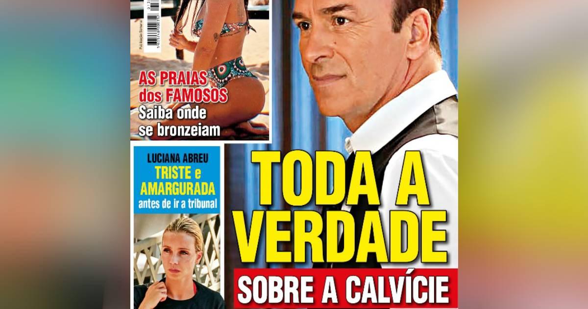Photo of Tony Carreira está a ficar careca?!