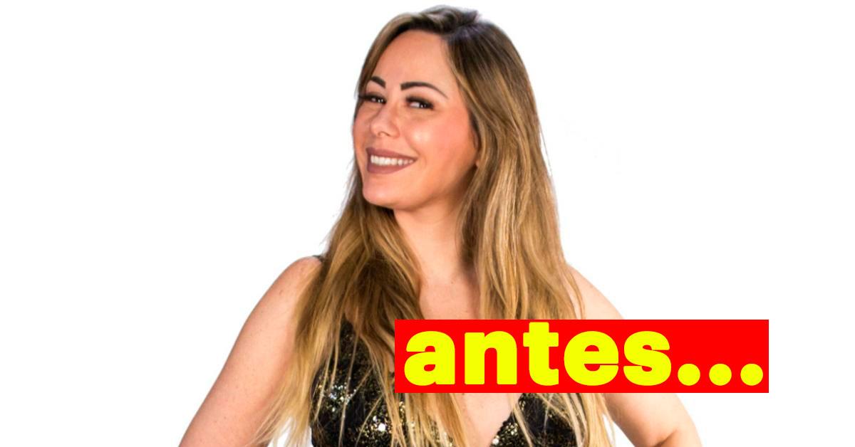 Photo of Ex-Love On Top gastou 25 mil euros em plásticas. Vê o resultado um mês depois