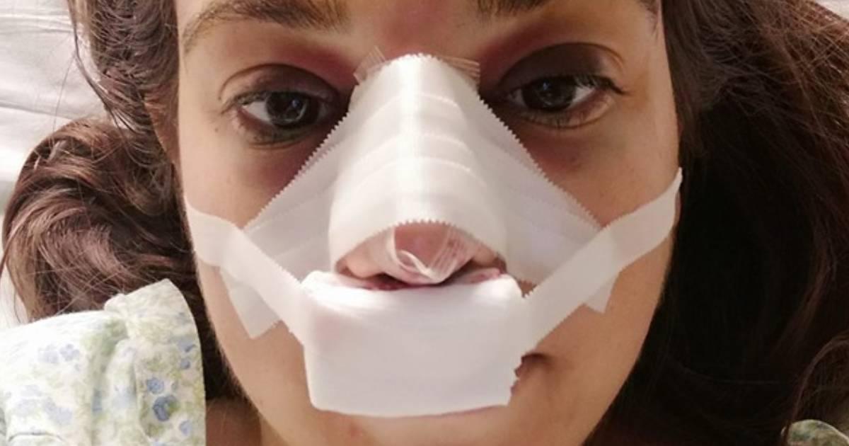 Photo of Love on Top. Vanessa Cunha mostra o RESULTADO «Ainda está super inchado, o meu nariz foi partido»