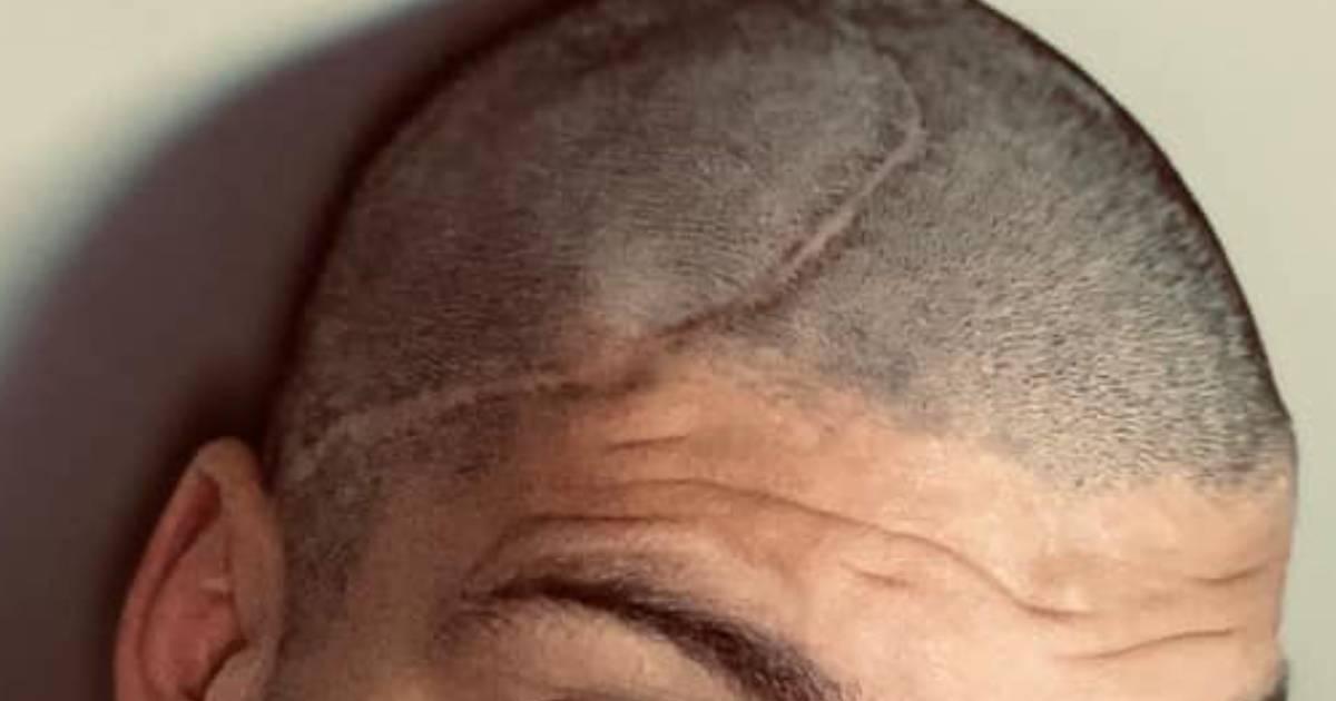 Photo of Ex-concorrente da Casa dos Segredos mostra a grande cicatriz que tem na cabeça