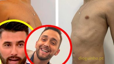 Photo of Luan Tiofilo DIVULGA fotografias do resultado após cirurgia plástica