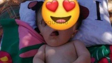 Photo of 'Bebé sem rosto' sofre três paragens cardíacas