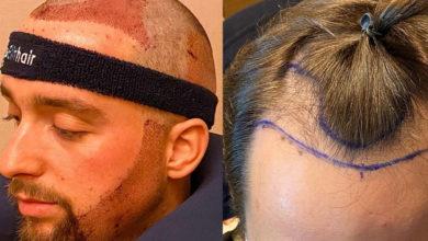 """Photo of Tiago Rufino faz transplante capilar """"Não poderia estar mais feliz"""""""